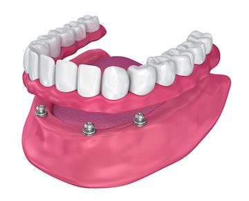 Model of full dentures l White Park Dental Concord NH