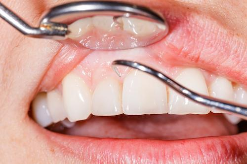 close up of patient receiving dental exam l general dentist concord nh