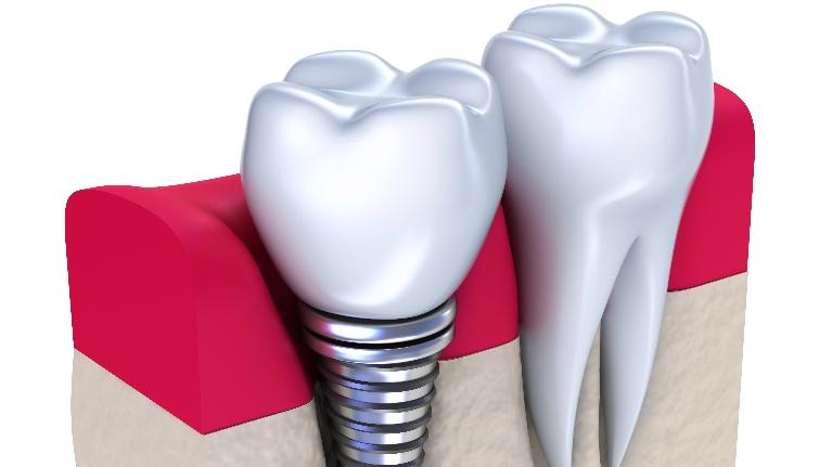 Dental Implants Concord NH