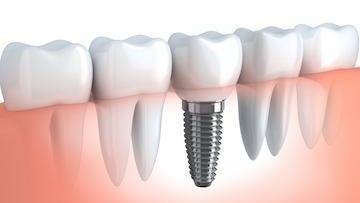 A cross section of a dental implant | Concord NH dental Implants