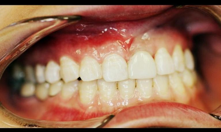 A-Patient-s-Smile-Restored-With-A-Dental-Implant-After-Image