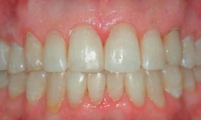 Direct-Composites-White-Fillings-After-Image