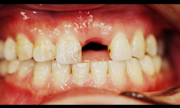 A-Patient-s-Smile-Restored-With-A-Dental-Implant-Before-Image