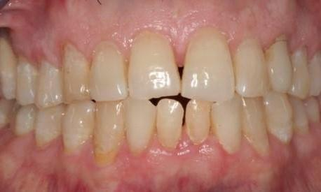 Direct-Composites-White-Fillings-Before-Image
